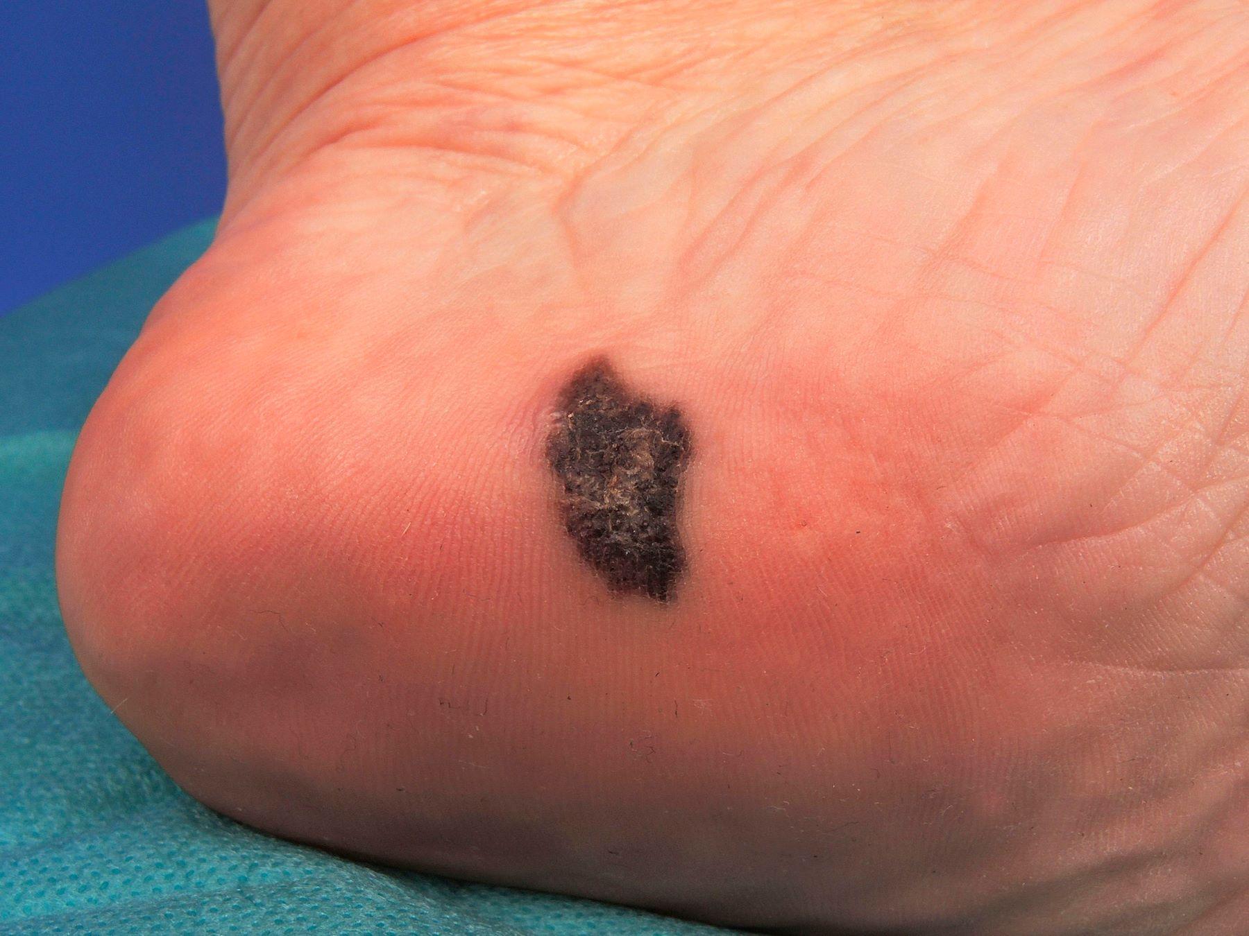 Melanoma en la suela del pie.
