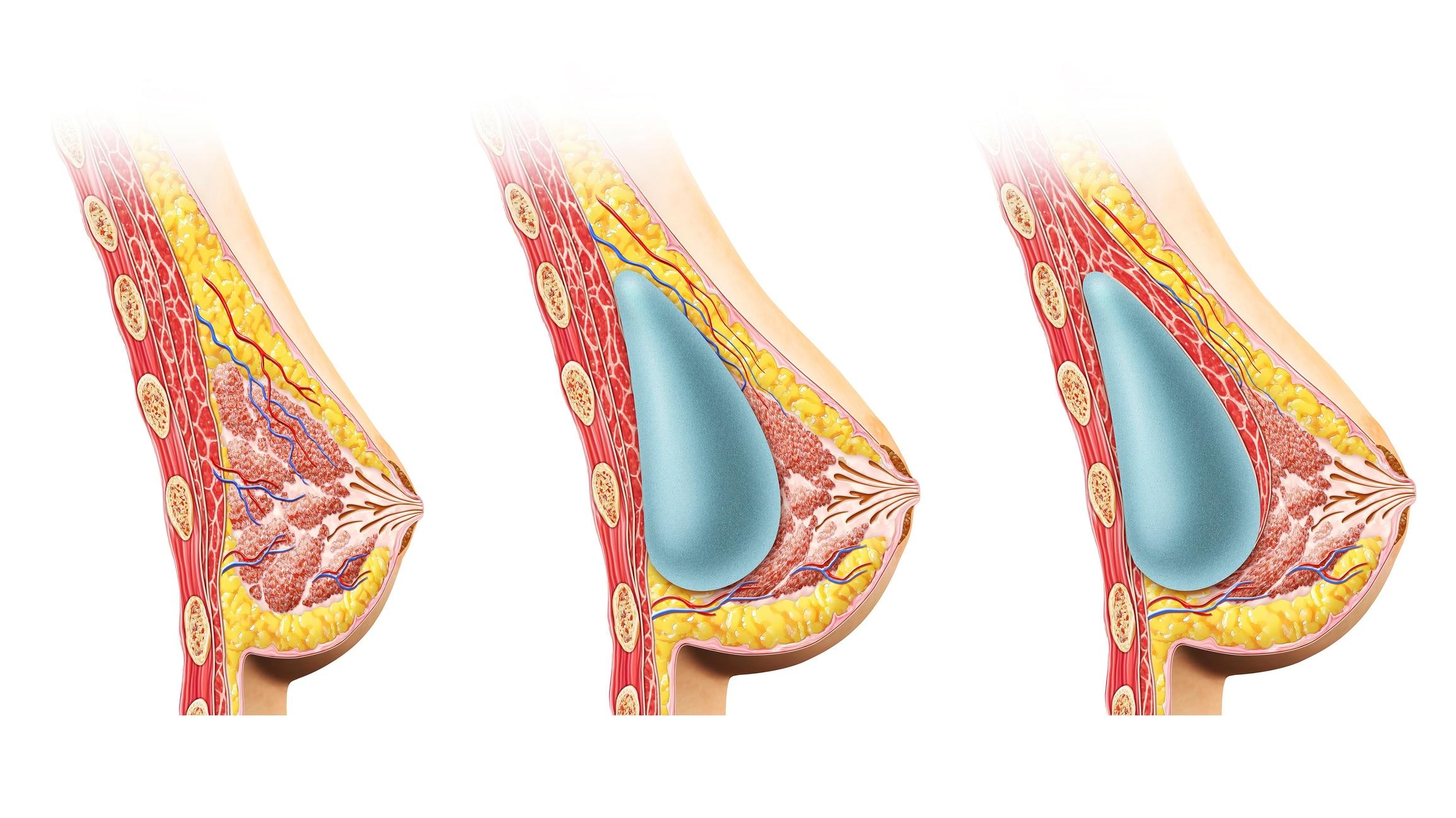 Female breast implant graphics