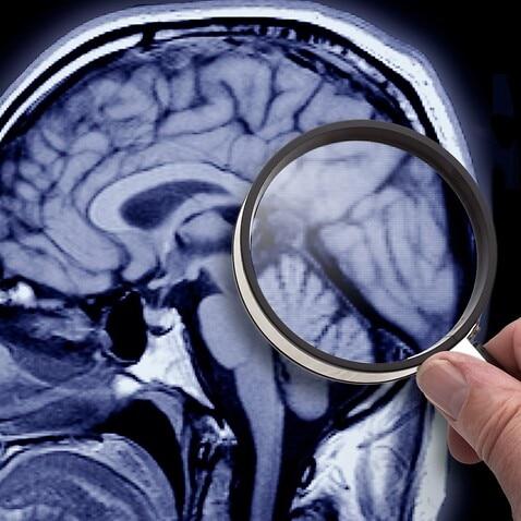 Das menschliche Gehirn wird immer noch erforscht