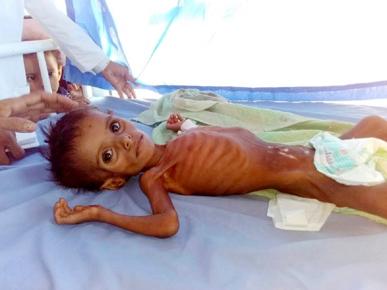A severely malnourished child at the Aslam Health Center in Hajjah, Yemen.